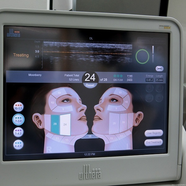 Ultherapy at Halley Medical Aesthetics